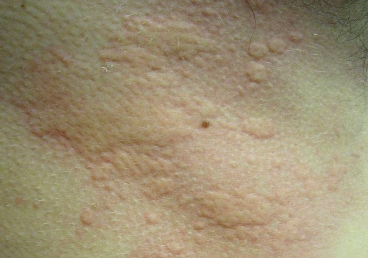 Аллергия на чеснок